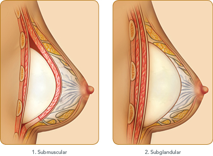 breast_diagram